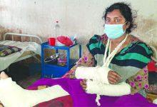 Photo of মাগুরায় হাত-পা ভেঙে হাসপাতালে ফেলে গেল স্বামী